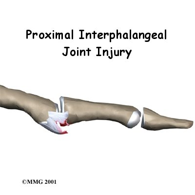 Welcome to Skill Builders patient resource about PIP Joint Injuries of the