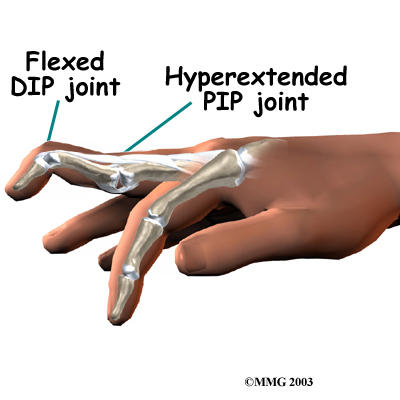 A swan neck deformity describes a finger with a hyperextended PIP joint and