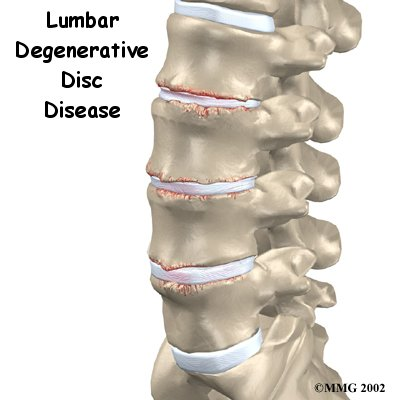 The intervertebral discs in the lower spine are commonly blamed for low back